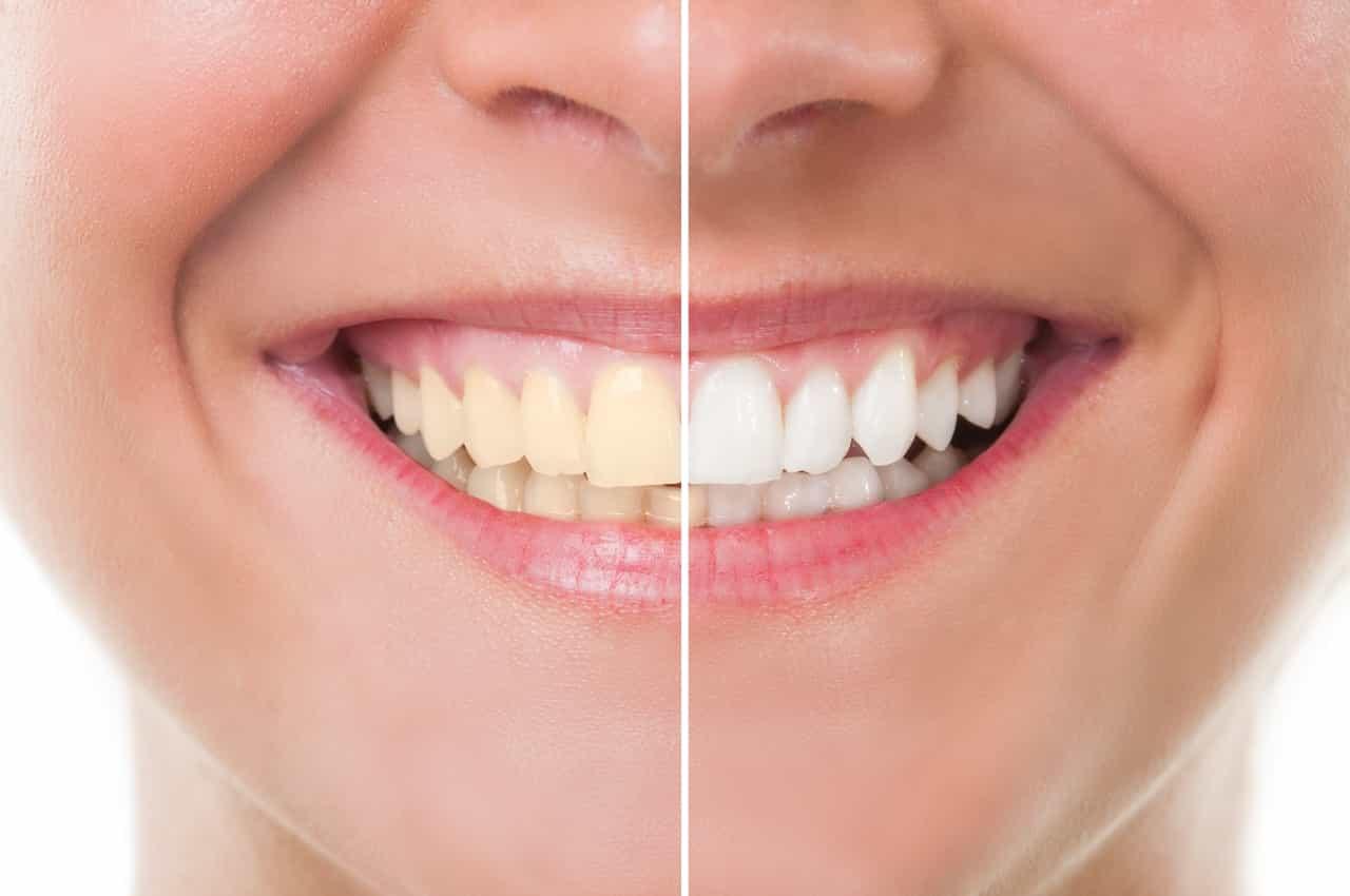 """Résultat de recherche d'images pour """"avant apres dent"""""""